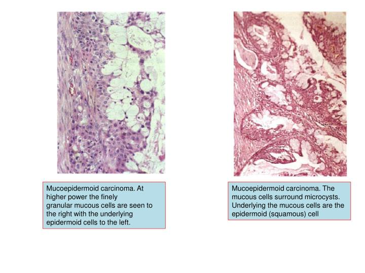 Mucoepidermoid carcinoma. At higher power the finely