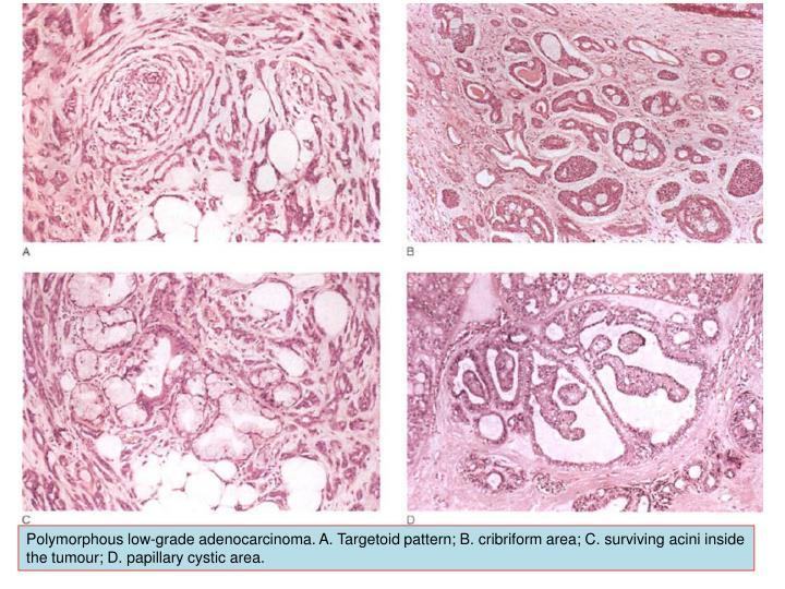Polymorphous low-grade adenocarcinoma. A.