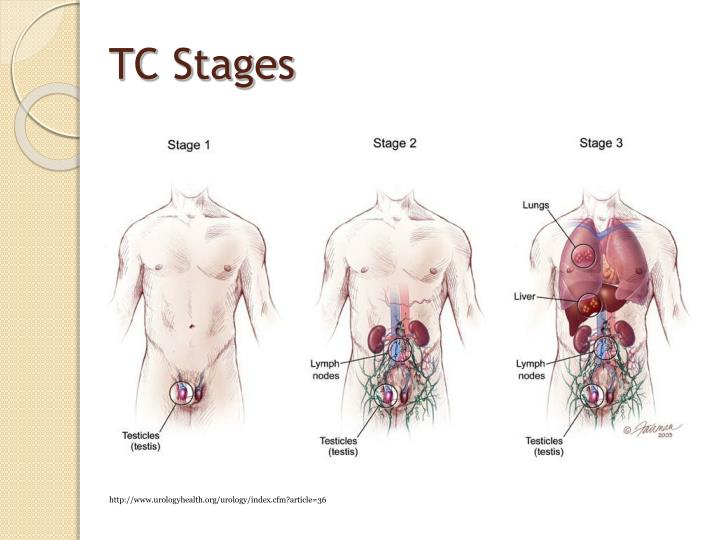 TC Stages