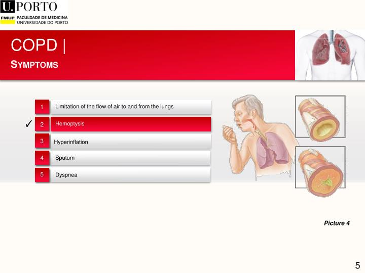 COPD |
