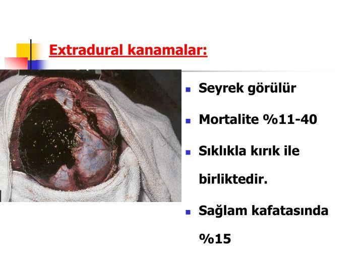 Extradural kanamalar: