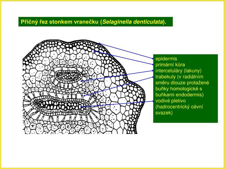 Příčný řez stonkem vranečku (