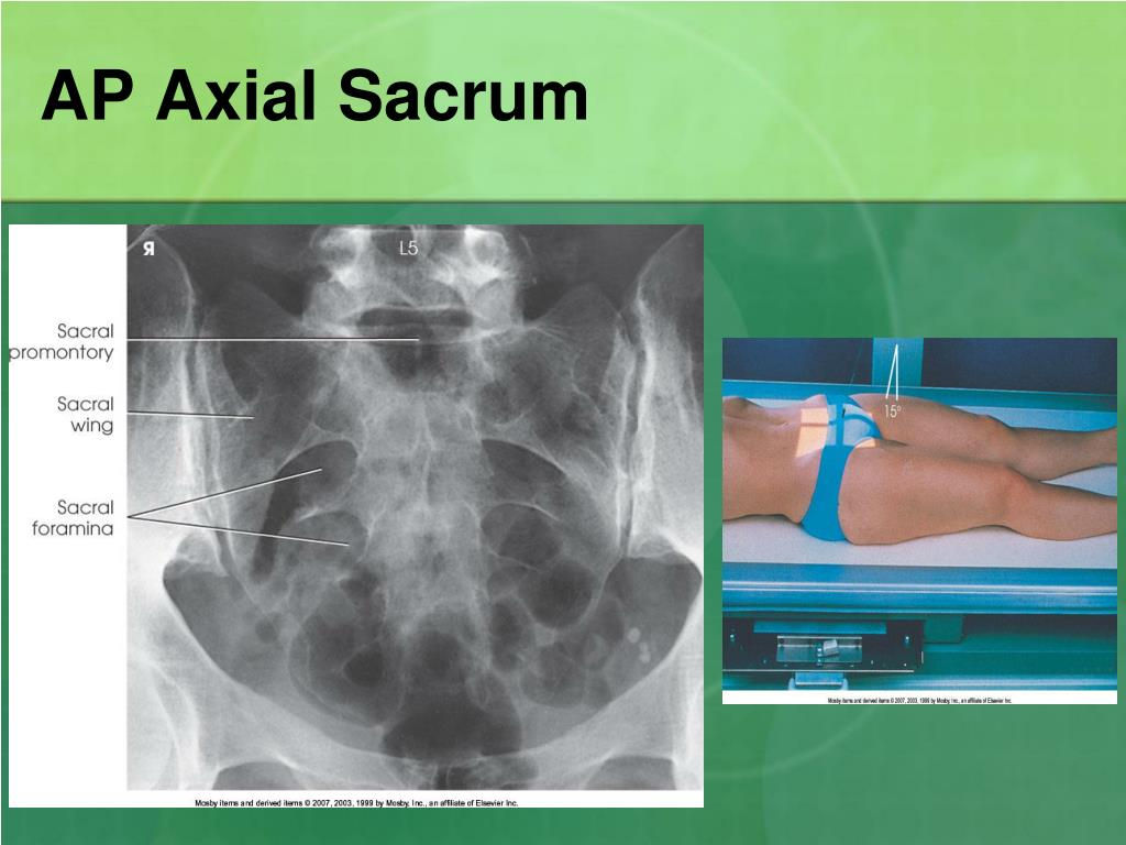 PPT - Sacrum/Coccyx and SI Jnts. PowerPoint Presentation ...