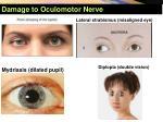 damage to oculomotor nerve1