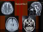 kazuistika 16