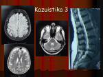 kazuistika 31