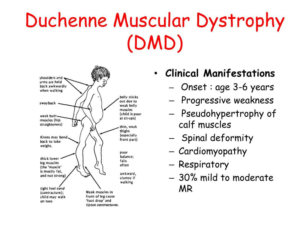 PPT - Muscular Dystrophies PowerPoint Presentation, free ...