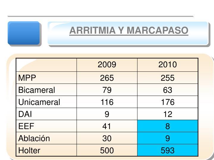 ARRITMIA Y MARCAPASO
