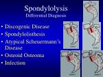 spondylolysis differential diagnosis