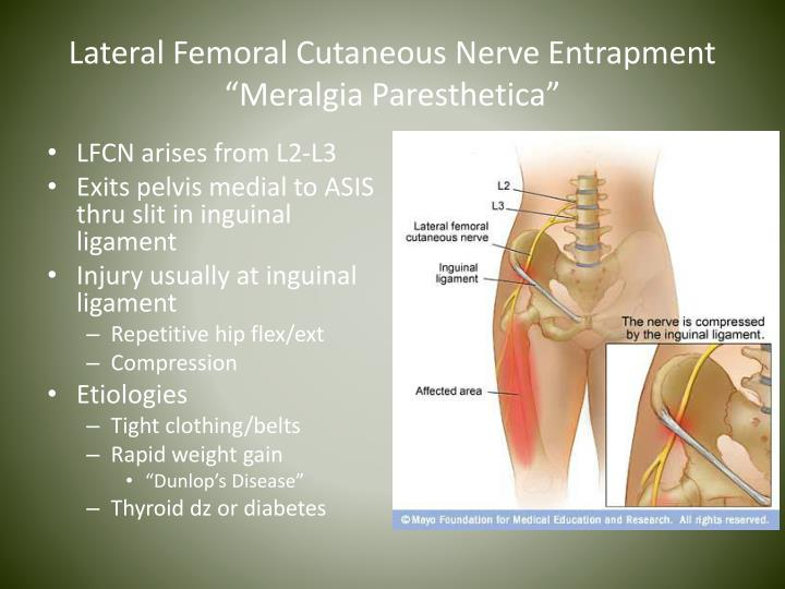 Lateral Femoral Cutaneous Nerve Entrapment