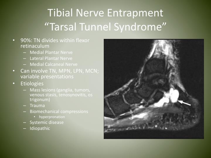 Tibial