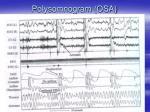 polysomnogram osa