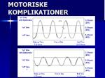 motoriske komplikationer