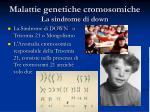 malattie genetiche cromosomiche la sindrome di down