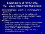 explanations of pure alexia h2 visual impairment hypothesis