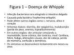figura 1 doen a de whipple