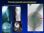formas pseudo sarcomatosas