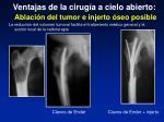 ventajas de la cirug a a cielo abierto ablaci n del tumor e injerto seo posible