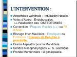 l intervention