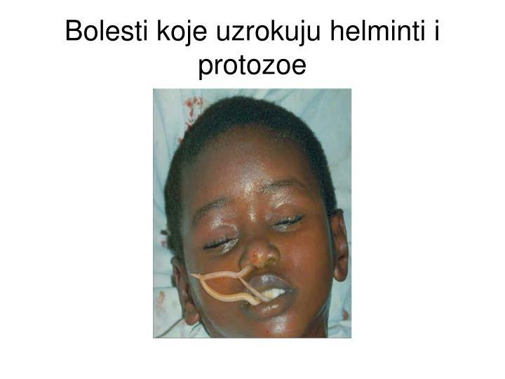 Bolesti koje uzrokuju helminti i protozoe