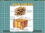 tipos de tejido seo
