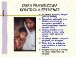 ospa prawdziwa kontrola epidemii