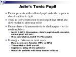 adie s tonic pupil
