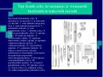 tipi lesnih celic ki nastanejo iz vretenastih fuzifornih in trakovnih inicialk
