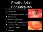 pitfalls adult conjunctivitis