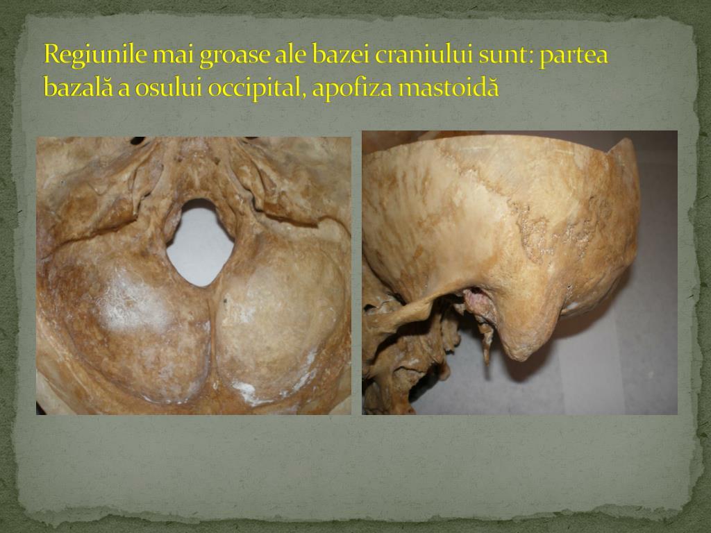Fractura os occipital