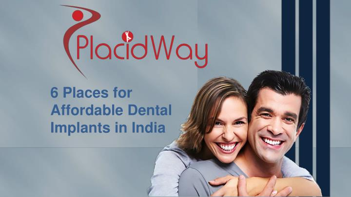 6 places for affordable dental implants in india n.