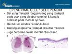 ependymal cell sel ependim