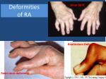 deformities of ra