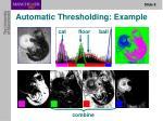 automatic thresholding example