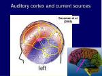 auditory cortex and current sources