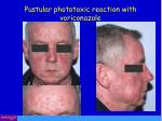 pustular phototoxic reaction with voriconazole