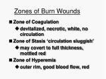 zones of burn wounds