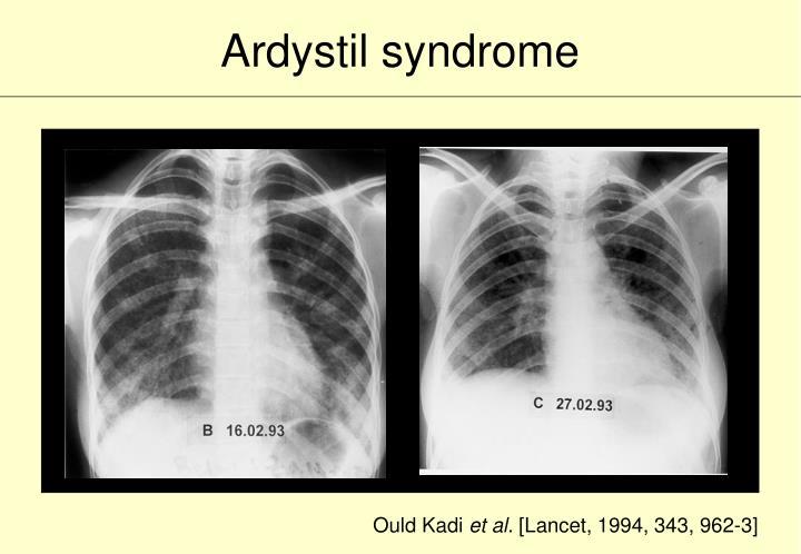 Ardystil syndrome