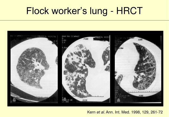 Flock worker's lung - HRCT