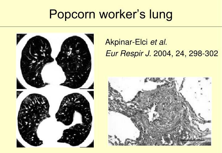 Popcorn worker's lung