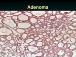 adenoma1
