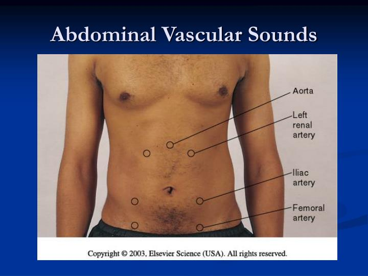Abdominal Vascular Sounds