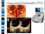 transvaginal sonography tvs