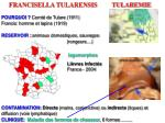 francisella tularensis tularemie