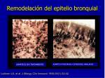 remodelaci n del epitelio bronquial
