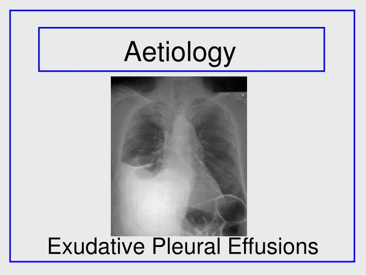 exudative pleural effusions n.