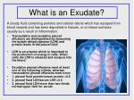 what is an exudate