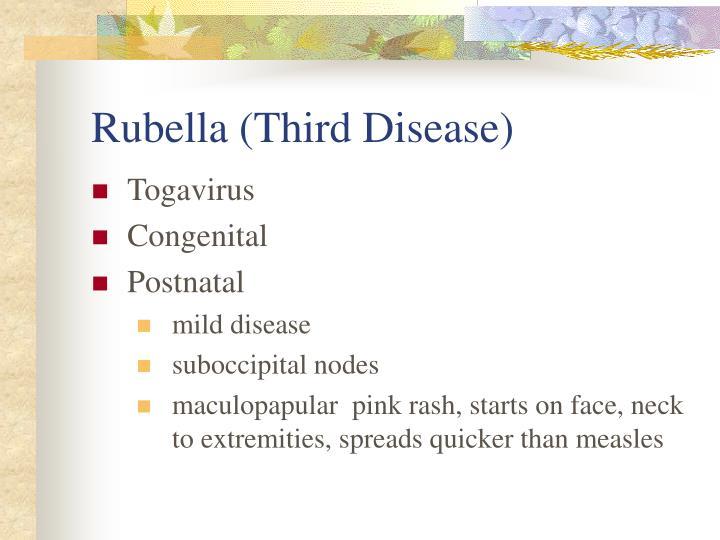 Rubella (Third Disease)