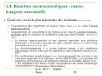 2 4 r sultats neuroscientifiques neuro imagerie structurelle