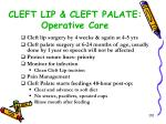 cleft lip cleft palate operative care
